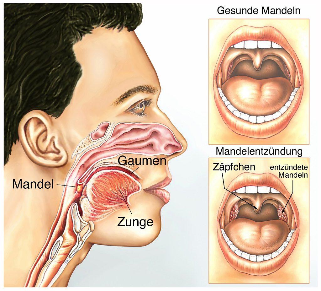 Mandelentzündung (Tonsillitis)